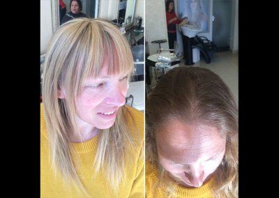 מילוי שיקום והארכת שיער דליל